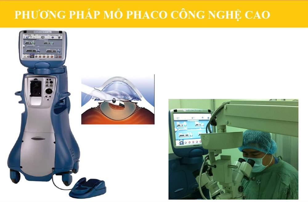 Khoa Mắt bệnh viện đại học y dược TP HCM